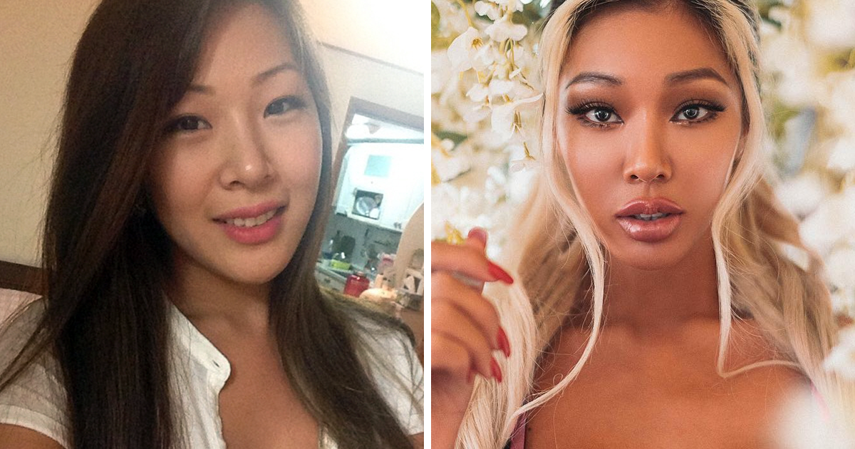 Plastic Surgery On The Rise In The U S  And South Korea