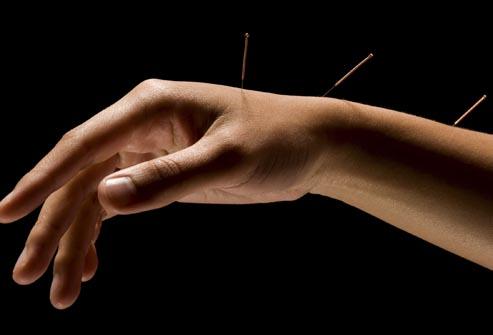 arm acupuncture