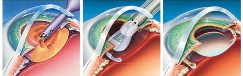 Phẫu thuật Phaco điều trị bệnh đục thủy tinh thể