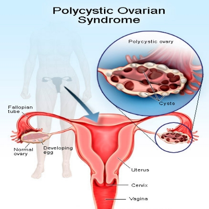 PCOS/PCOD