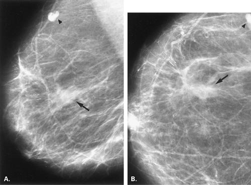 Image result for mammogram spiculations