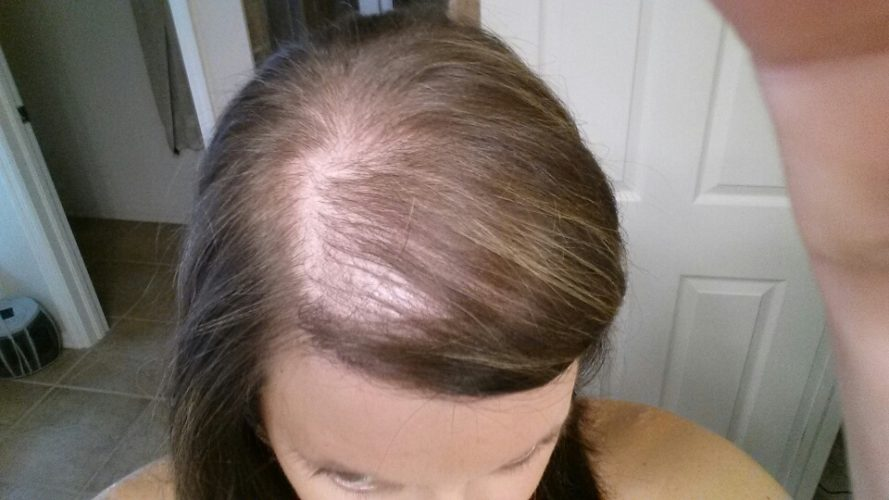 Hair Loss And Hormonal imbalance treatment in Hyderabad, PRP dermatologist near me