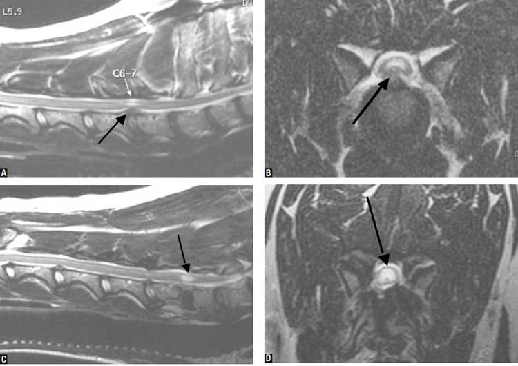 Syrinx progression in an 11-year-old, MC Dalmatian that was treated for an extradural compression from a C6-7 intervertebral disk extrusion