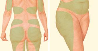 אזורי בעיית שאיבת שומן