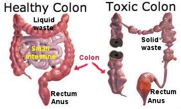 Image result for cleansing colon