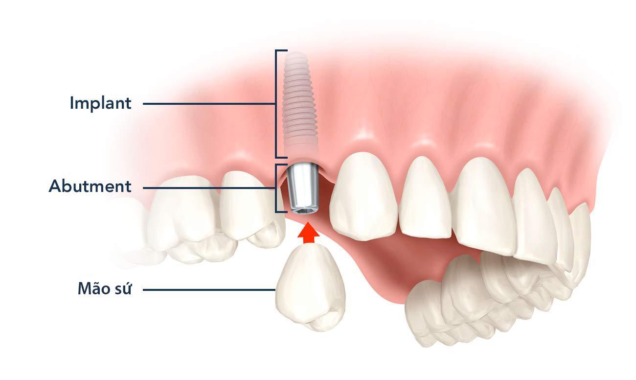 Tư vấn trồng răng giả giá rẻ ở đâu tại TP. HCM?