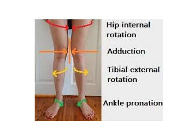 Pronation Distortion Syndrome: All You Need To Know 53 - Daily Medicos