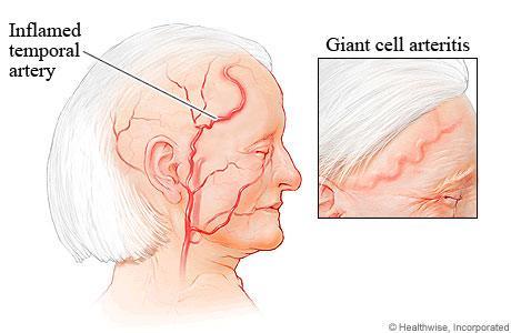 Hasil gambar untuk giant cell arteritis