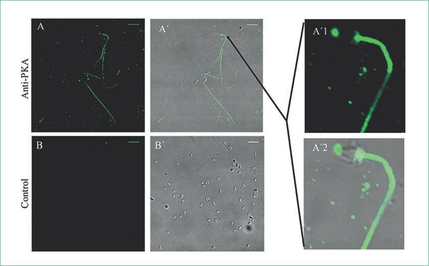 La PKA se distribuye a lo largo del espermatozoide e incluye las áreas de la mitocondria y del acrosoma.
