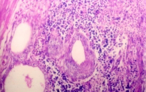 Microscopic picture showing peri-glandular cellular infiltration in an endometritis affected buffalo (H&E stained at 100 X magnification).