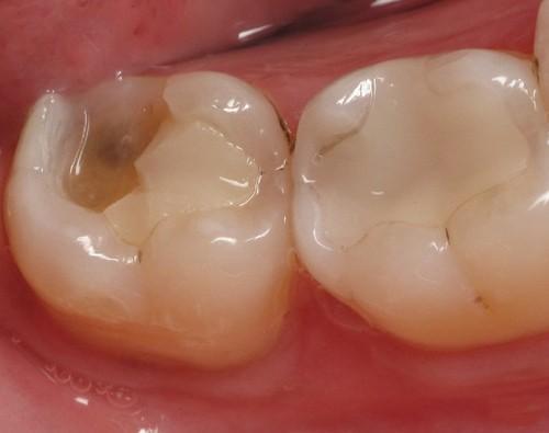 Bọc răng hàm bị sâu được thực hiện như thế nào?
