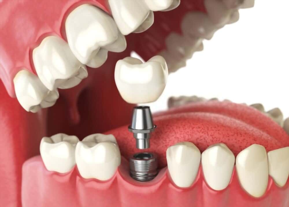 dental implants is a treatment to fix artificial teeth on gums.