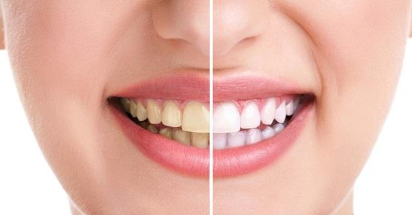Sử dụng kem đánh răng than hoạt tính có an toàn không?