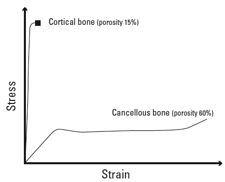 Idealized compressive stress-strain curve of cortical and cancellous bone samples depicting the effect of bone porosity on bone's mechanical behavior