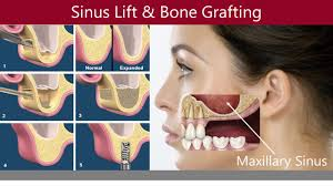 Image result for sinus lift