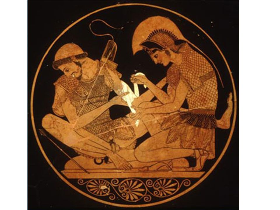 Achilles Binding the Wounds of Patroclus