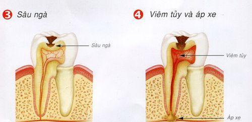 Niềng răng hô mất bao lâu thì có răng đẹp? - Nha khoa Bally 1