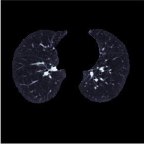 Lung structure masks