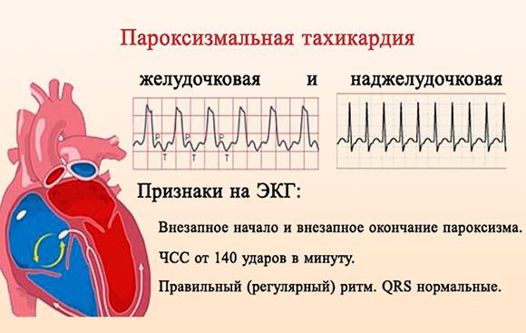 Пароксизмальная тахикардия симптомы лечение первая помощь