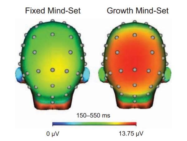 Imagem mostra atividade cerebral diante do erro de Mentalidade Fixa x Mentalidade de Crescimento