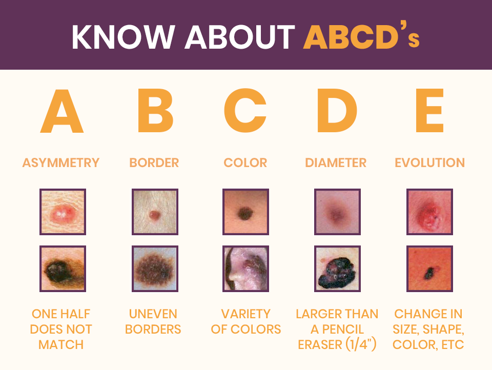 Understanding The Different Types Of Skin Cancer Treatment Zeeva Clinic