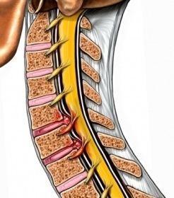 Грыжи шейного отдела позвоночника лечение, межпозвоночная грыжа ...