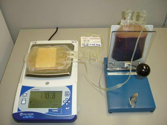 Extracting plasma from centrifuged whole blood