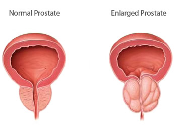 Image result for enlarged prostate