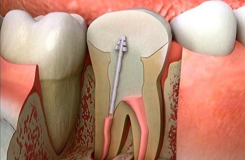 Quy trình thực hiện chữa tủy răng diễn ra thế nào?