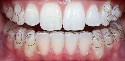 Tổng hợp các ưu điểm của niềng răng mắc cài tự buộc - Nha khoa Bally 1