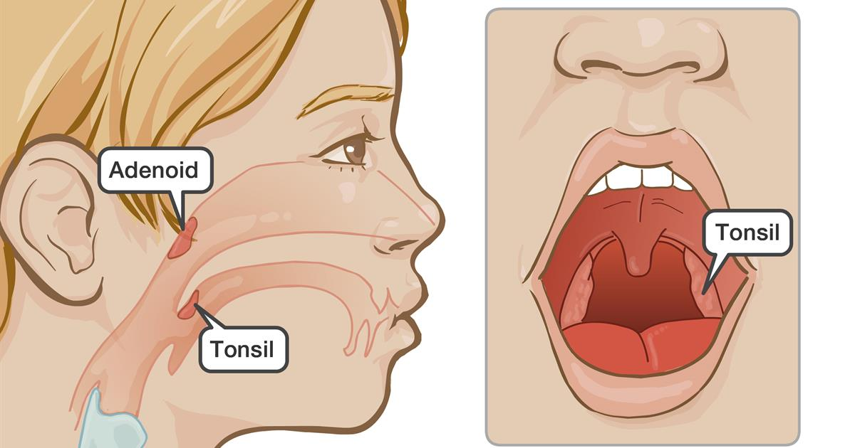 Tonsils- What They Do & Why You Might Have To Remove Them?