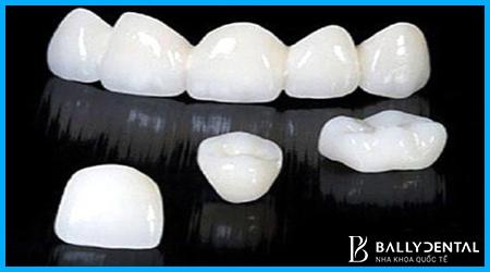 Răng toàn sứ Ceramill Zolid và những ưu điểm nổi bật - Nha khoa Bally