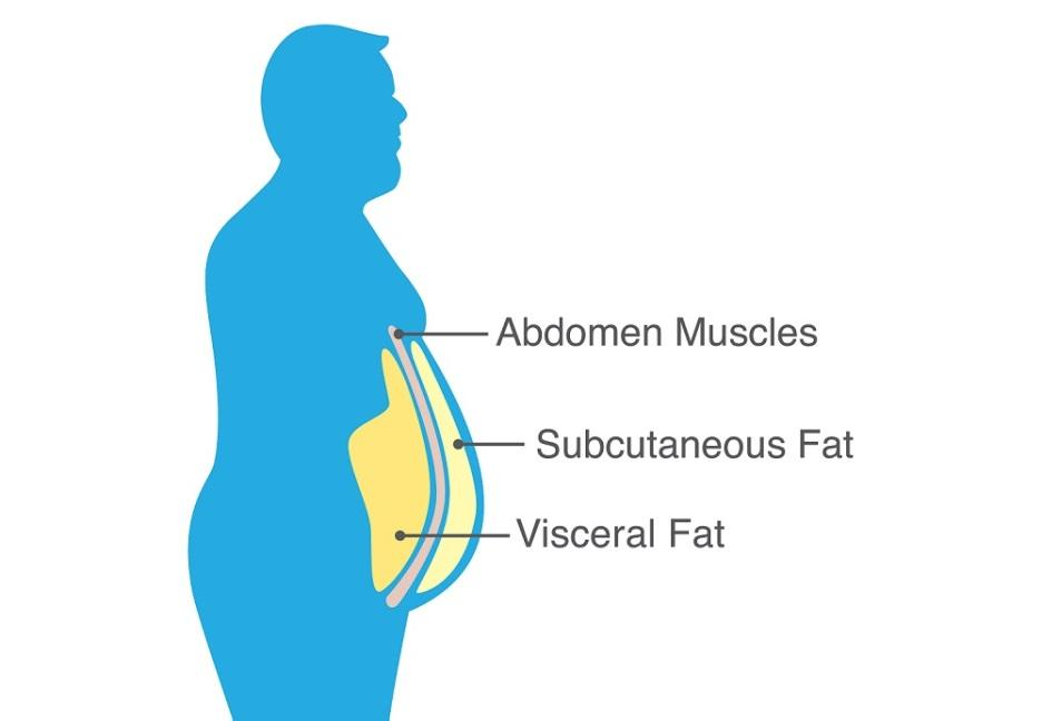 https://sanesolution.com/wp-content/uploads/2018/08/the-effects-of-Viseral-Fat.jpg