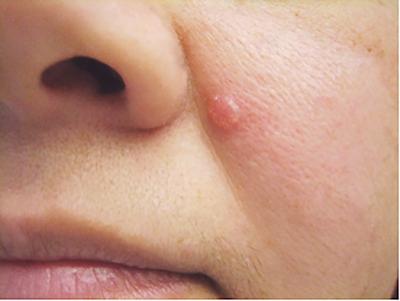 Skin Cancer Information