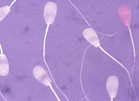 A bovine semen smear stained with eosin-nigrosin at 1000 X magnification.
