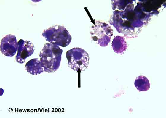 BAL cytology showing hemosiderophages (arrows). Wright-Giemsa stain. Magnification: 1000X.
