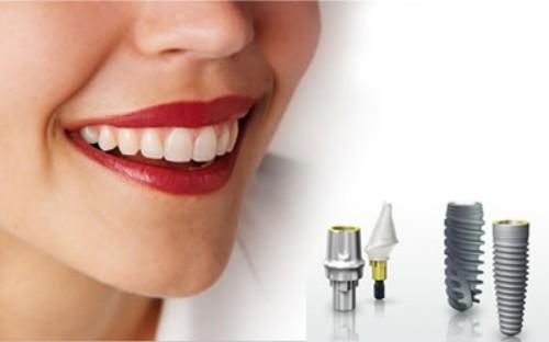 Cấy ghép răng Implant mất thời gian bao lâu? - Nha khoa Bally