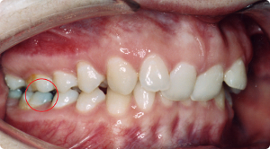 ocluzie dentara clasa 2 tip 2