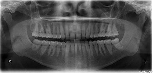 Radiografie ortopantomografica