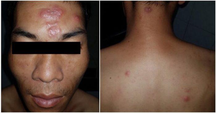 Một người ở Lạng Sơn mắc bệnh phong cùi