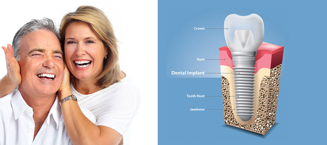When is The Right Time To Do Dental Implants?