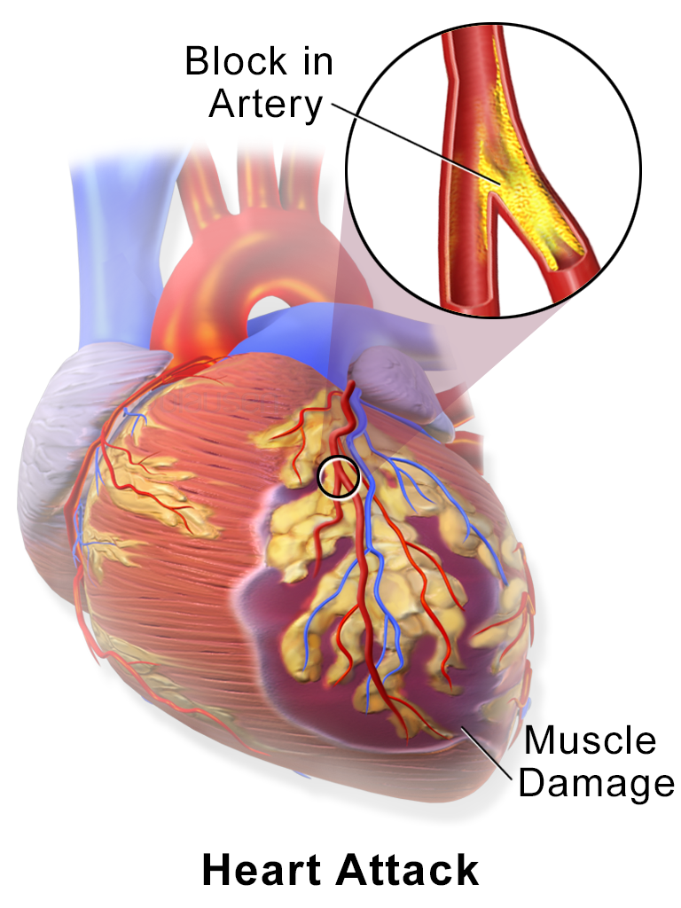 Image result for acute myocardial infarction