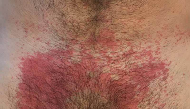 Dermatitis de contacto provocada por cremas.