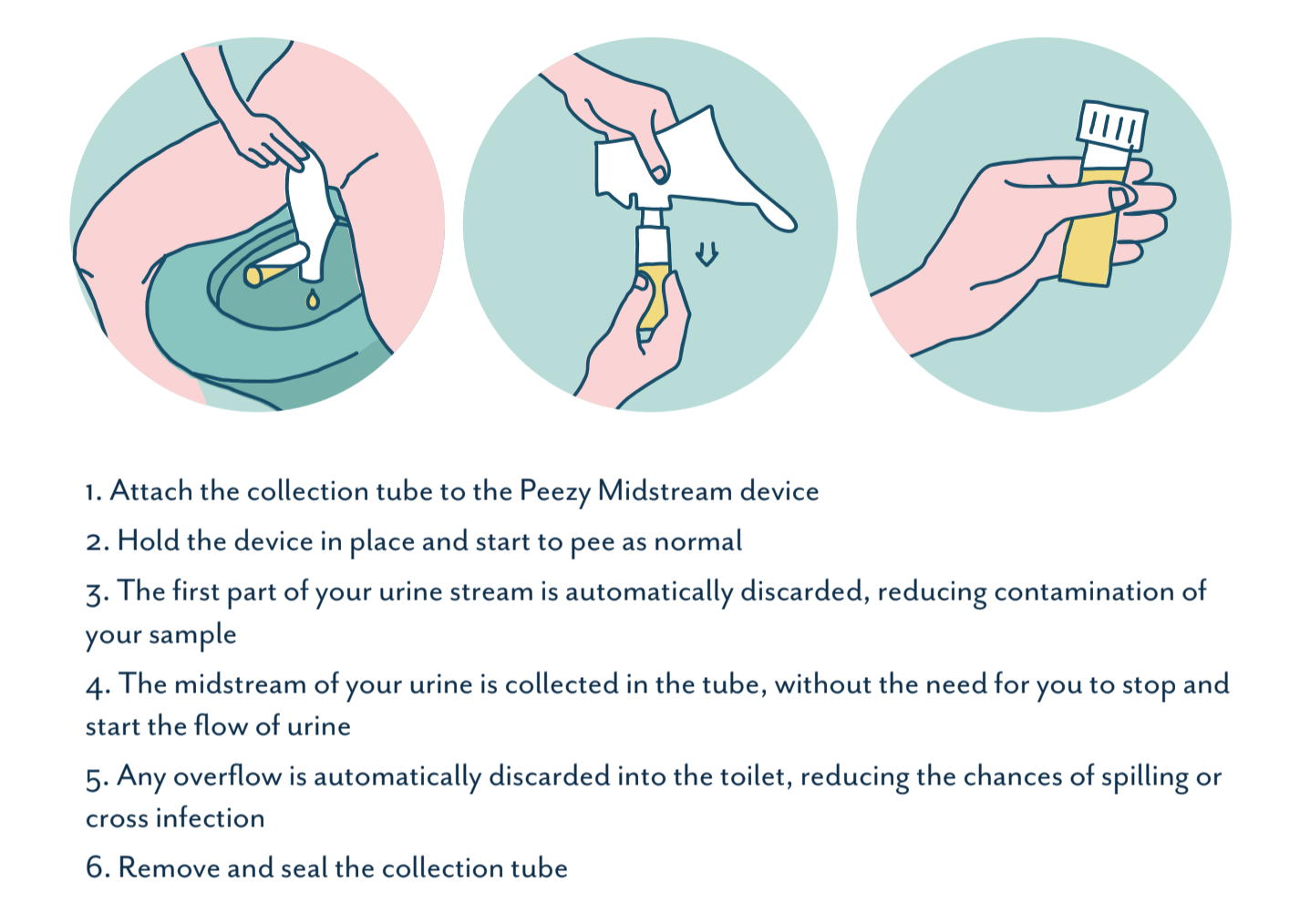 Clean catch urine - Peezy Midstream collection instructions