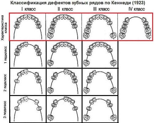 Дефекты зубов