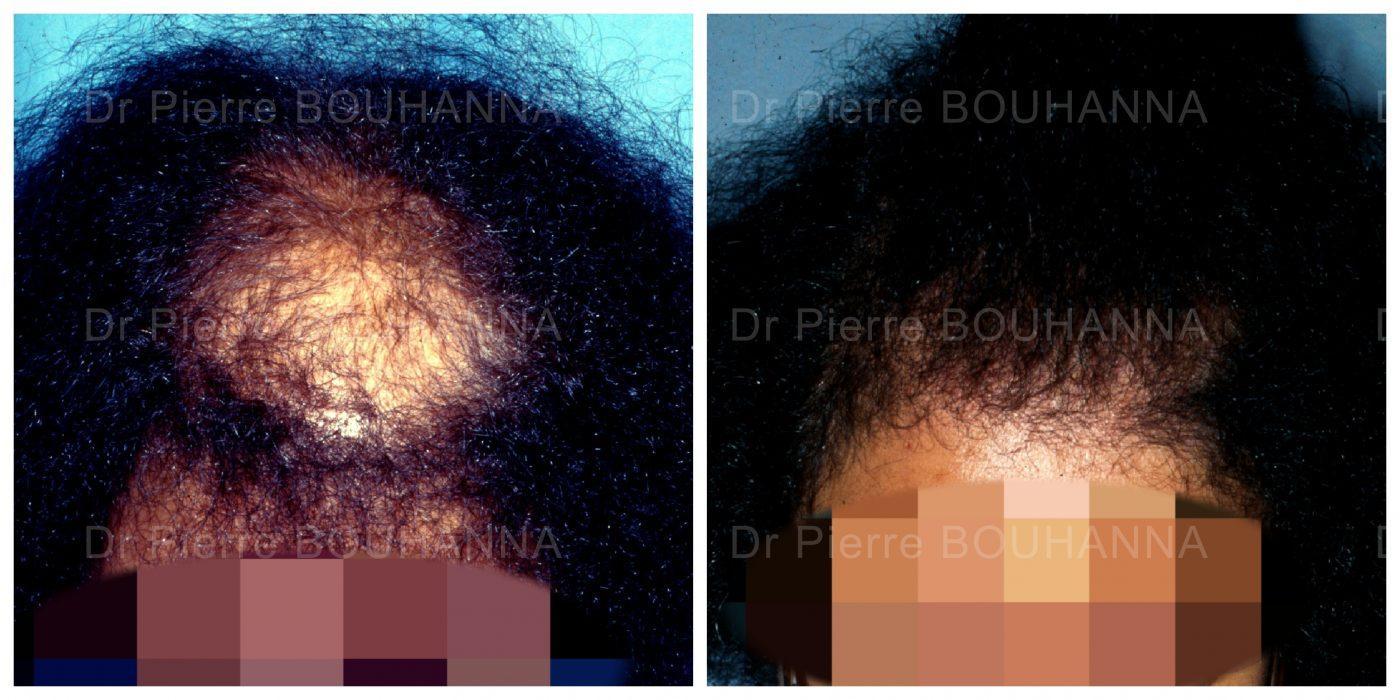 https://bouhanna.com/wp-content/uploads/Cas-FUL-4_1-session_1200-cheveux-1400x700.jpg