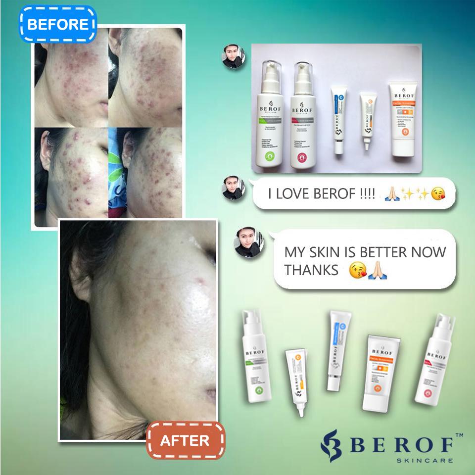 Berof, Skincare, Acne treatment, Lahore, Dr.Awais, MySkin Aesthetics & Laser Lahore