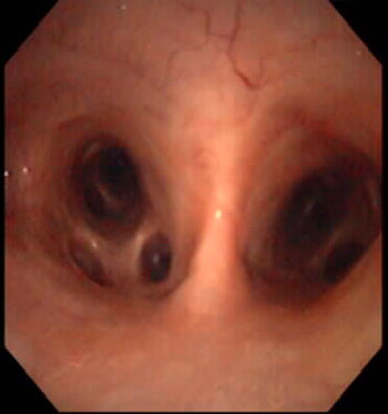 Bronchial edema in a horse with heaves.
