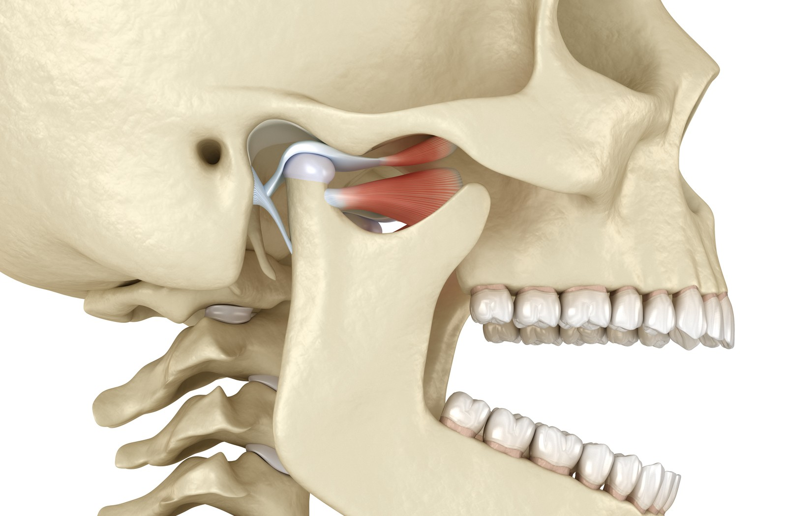 A 3-D rendering of the human skull highlighting the temporomandibular joint by colouring the muscles and bones