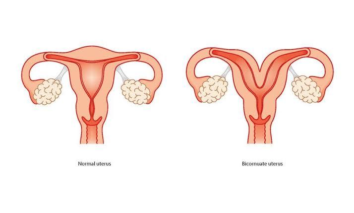 Everything You Need To Know About A Heart Shaped Uterus % - % The Voice Of Woman